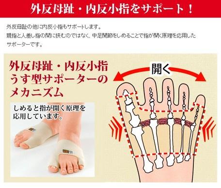 日本⭐️腳指外翻矯正帶