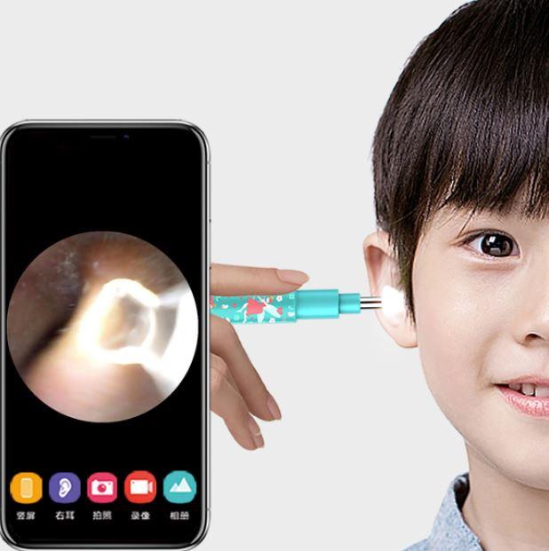 Bebird 兒童版 採耳神器 BB1 Smart Ear Cleaning Stick