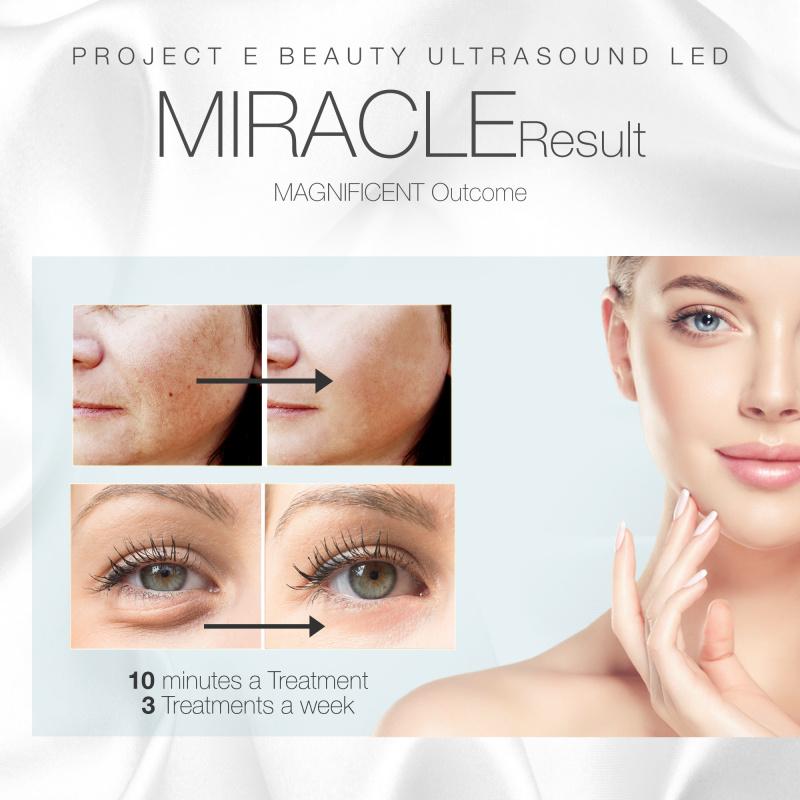 Project E Beauty 光子超聲波導入機  3色LED超聲波振動臉部緊緻提昇袪幼紋光子嫩膚導入機