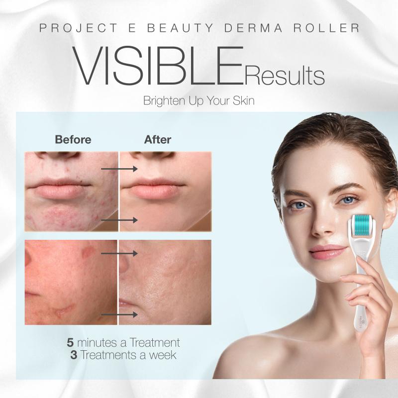 Project E Beauty Derma Roller | 540鈦合金淡化痘印及色素修復凹凸洞促進膠原蛋白增生0.25MM低敏微針滾輪