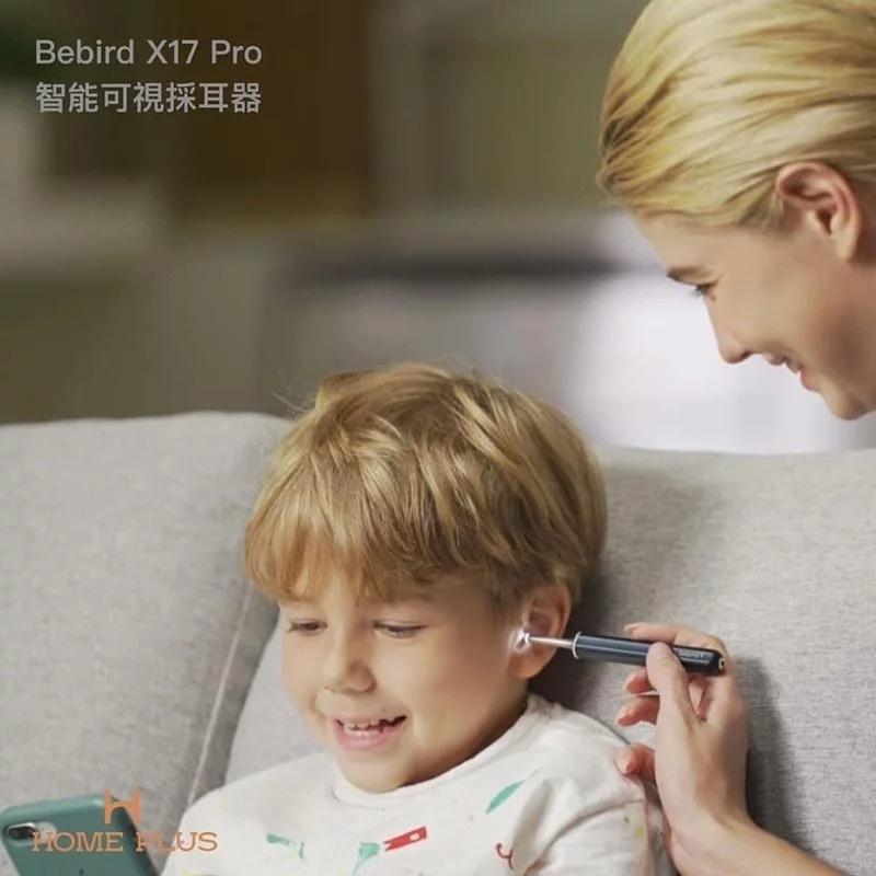 Bebird X17 Pro 智能可視 採耳器👂👀