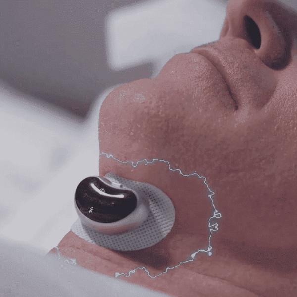 Snore Circle 智能下巴止鼾器